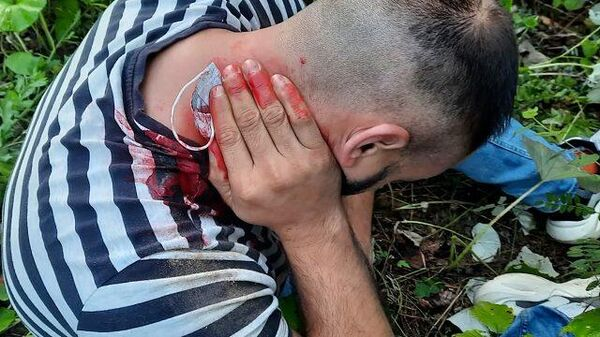 Раненые мигранты на границе - Sputnik Latvija
