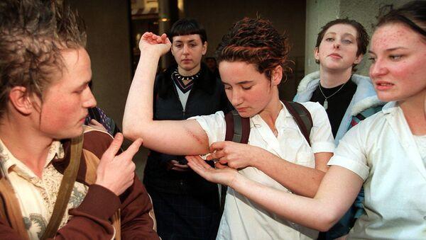 Девушка демонстрирует побои на руке - Sputnik Latvija