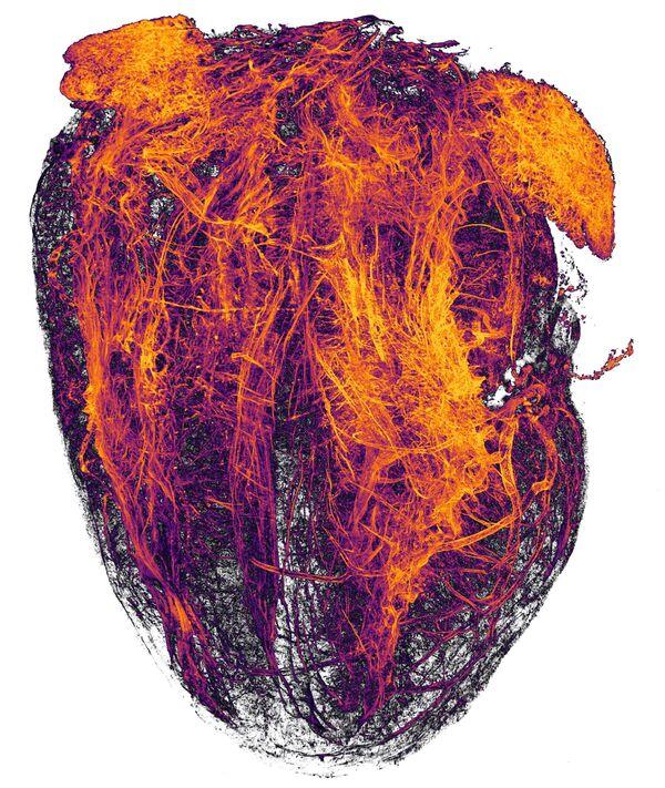 Снимок Blood vessels of a murine (mouse) heart following myocardial infarction (heart attack) фотографов Simon Merz, Lea Bornemann и Sebastian Korste , занявший 20-е место в фотоконкурсе Nikon Small World - 2019 - Sputnik Латвия