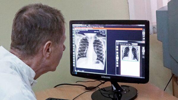 Врач знакомится с результатами рентгенологического исследования - Sputnik Латвия